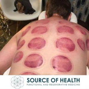 Cupping Therapy, Scottsdale, AZ