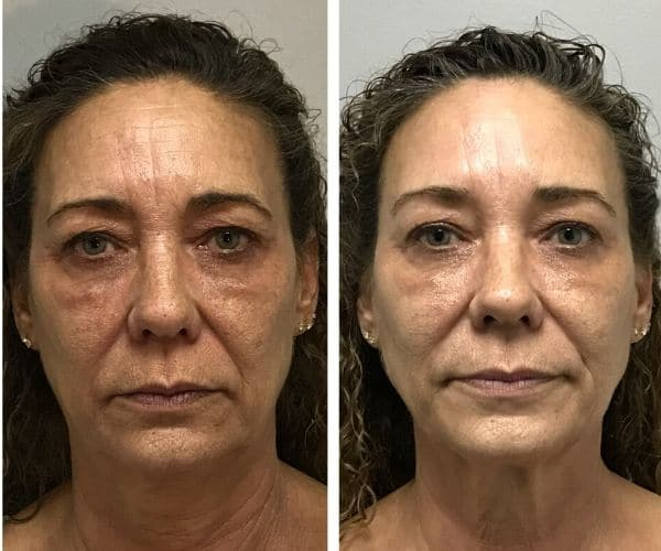 PRP Facelift Before and After, Scottsdale, AZ