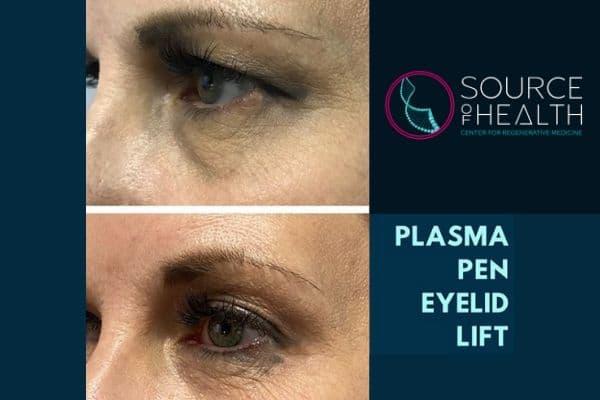 Plasma Pen Treatment, Scottsdale, AZ