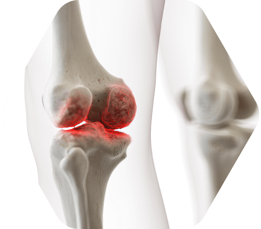 PRP Injection Knee Therapy